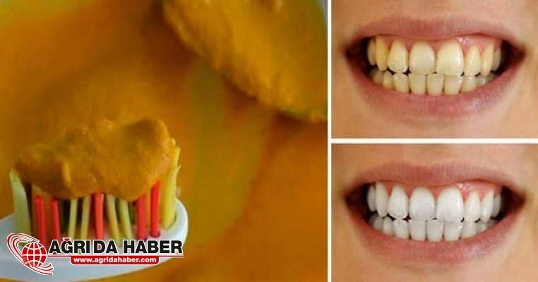 Dişleri Beyazlatan Doğal Yöntemler