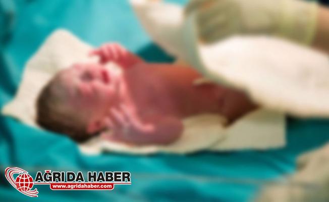 Hindistan'da Denizkızı Sendromlu Bebek 4 Saat Sonra Öldü !
