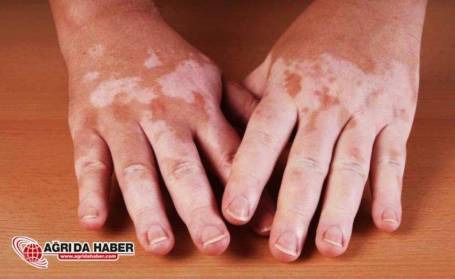 Vitiligo Hastalığı Nedir? Nasıl Tedavi Edilir?