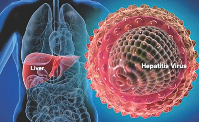 Hepatit A hastalığı nedir?Belirtileri Nelerdir?