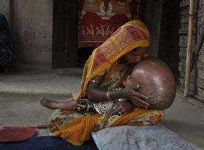 Dünyayı şaşırtan bebekten iyi haber