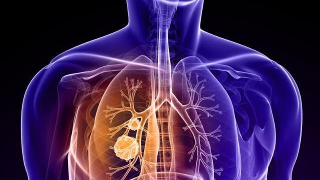 Elektronik sigaralar da masum değil! Kanser, kalp ve akciğer hastalıklarına neden oluyor