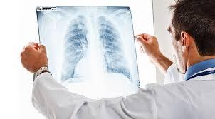 ABD Açıkladı Dünyada Akciğer kanseri durmuyor !