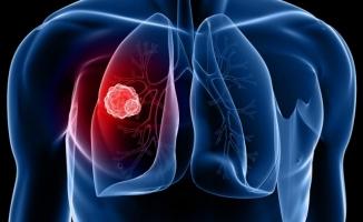 Akciğer Kanseri Hastalığında sevindiren Tedavi