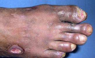 Şeker Hastalarına Müjde! Yaralardan Ameliyatsız Şekilde Kurtulun