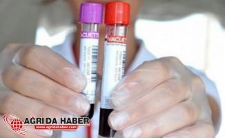 Nikahtan Önce HIV Testleri Zorunlu Olsun Tartışması