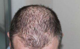 Saç Dökülmesine Çözüm! Evde Uygulanacak 5 yöntem önerisi