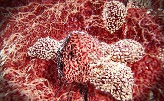 Kanser'in Yayılmasına Yardımcı Olan Hücreler Belirlendi!