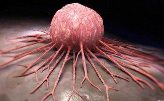 Kanserin hastalığının 10 Belirtisi