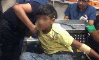 Küçük Suriyeli Çocuk Elini Kıyma Makinesine Kaptırdı