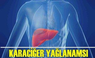 Türkiye Nüfusunun Çoğunda Karaciğer Yağlanması Var