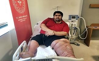 300 Kiloluk hasta kilo vermeye başladı